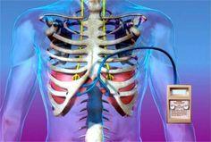 Mini-pacemaker verovert de medische wereld De medische wereld is weer een snufje rijker, een heel klein snufje. De nieuwe pacemaker is slechts 1 kubieke centimeter groot en weegt maar een paar gram. Voor het eerst is de mini-pacemaker ingepland bij een Nederlandse patiënt. De …