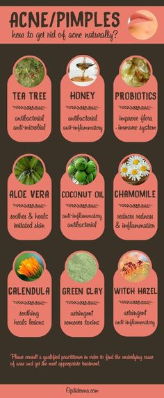 The Best Natural Remedies for Acne & Pimples (Infographic). Try Tea Tree essential oil, manuka honey, probiotics, aloe vera, coconut oil, chamomile, calendula, green clay and witch hazel! To get rid of acne once and for all, check this out: http://www.optiderma.com/skin-conditions/how-to-get-rid-of-acne-remedies/