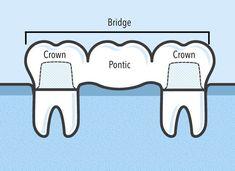 Bridge Alternative to Titanium dental implant Boundless Oral Health How To Get Rid Dental Assistant Study, Dental Hygiene Student, Dental Humor, Dental Hygienist, Dental Implant Surgery, Teeth Implants, Dental Life, Dental Health, Oral Health