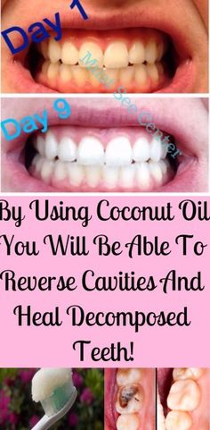 are surely familiar with the countless health benefits of coconut oil, but y. You are surely familiar with the countless health benefits of coconut oil, but y., You are surely familiar with . Oral Health, Dental Health, Health Tips, Dental Care, Gum Health, Teeth Health, Healthy Teeth, Healthy Hair, Reverse Cavities