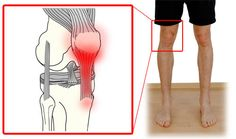 Where You'll Feel Patellar Tendonitis Symptoms