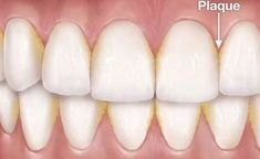 Dental plaque is a mass of bacteria (biofilm) that grows on surfaces within the mouth. So, here's how you can remove dental plaque with only one ingredie. Dental Hygiene, Dental Health, Dental Care, Children's Dental, Oral Health, Tartar Removal, Plaque Removal, Receding Gums, Get A Life