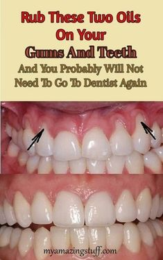 Rub These Two Oils On Your Gums And Teeth - My Amazing Stuff