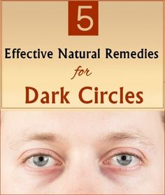 Dark circles represent a problem and they rob us of brilliance. These areas of discolouration under the eyes appear for several reasons: fatigue, prolonged exposure to sunlight, lack of iron, vitamin K and . Beauty Hacks Nails, Beauty Makeup Tips, Natural Beauty Tips, Beauty Ideas, Diy Beauty, Makeup Tricks, Beauty Stuff, Beauty Secrets, Winter Beauty Tips