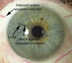 Understanding Iridology~Iridology is the diagnostic method that examines the patterns and changes in the iris of the eye that may suggest a health issue or disease.