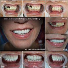 Dental Holiday Turkey - Dentist in Turkey - Dental Implants, Crowns, Veneers Dental Implant Surgery, Teeth Implants, Dental Bridge Cost, Restorative Dentistry, Dental Veneers, Dental Laboratory, Smile Makeover, Dental Crowns, Teeth Care