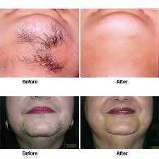 Hair Removal Cream Products