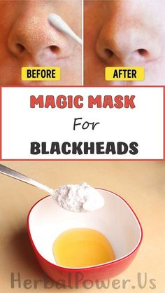 Blackheads are most frequently in places like the nose or nearby. What is utterly important about blackheads is the fact that it is much easier preventing their appearance than eliminating them. For this purpose, specially[. Homemade Face Masks, Homemade Skin Care, Homemade Beauty, Facial Skin Care, Facial Masks, Blackhead Mask, Diy Blackhead Remover, Vaseline Beauty Tips, Face Mask For Blackheads