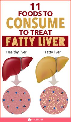 Liver Disease Diet, Fatty Liver Symptoms, Fatty Liver Diet, Healthy Liver, Disease Symptoms, Fatty Liver Remedies, Crohn's Disease, Best Diet Foods, Foods To Eat
