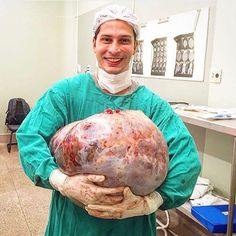 AMAZING STORIES AROUND THE WORLD: Doctor Poses With Giant Ovarian Cyst Removed From ...