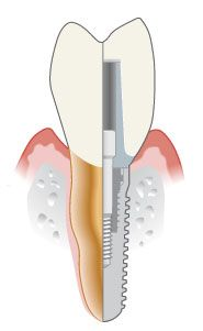 What is a Dental Implant, how do Dental Implants work