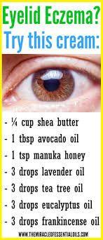 Eye Eczema, Eczema On Eyelids, Organic Skin Care, Natural Skin Care, Natural Oils, Natural Beauty, Best Cream For Eczema, Dental, Just Natural Products