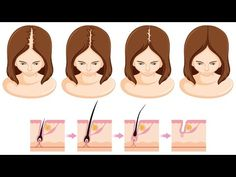 How to Grow Hair Faster, Thicker and Longer - Everyday Remedy