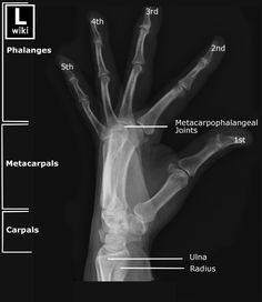 Radiographic Anatomy - Hand Lateral Fanned