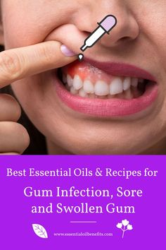 Find out what causes gums to swell and the best 5 essential oils and 6 blends for gum pain and infection, gingivitis, sore, swollen and inflamed gums. Essential Oils Tooth Ache, Essential Oil For Swelling, Essential Oils For Inflammation, Essential Oils Guide, Sores On Gums, Swollen Gums Remedy, Gum Health, Home Remedies, Beauty