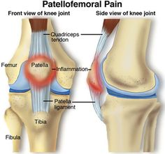 One of the most common types of knee pain, Patellofemoral pain syndrome refers to pain at the front of the knee, in and around the kneecap. #physicaltherapy
