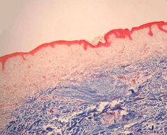 A trichrome histology stain is a mixture of three dyes. This histology stain is used on connective tissue to visualize collagen and reticular fibers.