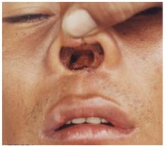Side effect of frequent cocaine drug use. With a perforated septum, think of how much MORE cocaine can be snorted. Is this really what you want? #addiction