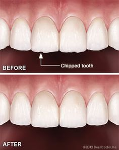 Image result for Dental Implants Makati