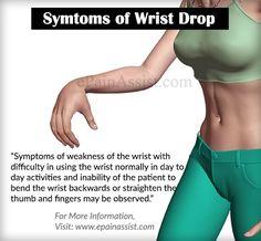 symptoms of Wrist Drop