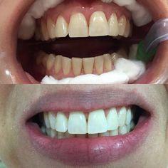 Porque todo dia é dia de devolver sorrisos!!  #dentistry #bleaching #clareamentodental #odontologia #odontoporamor #cosmeticdentistry #oralrehabilitation #dradenisepupim by denisepupim Our Cosmetic Dentistry Page: http://www.myimagedental.com/services/cosmetic-dentistry/ Google My Business: https://plus.google.com/ImageDentalStockton/about Our Yelp Page: http://www.yelp.com/biz/image-dental-stockton-3 Our Facebook Page: https://www.facebook.com/MyImageDental Image Dental 3453 Brookside Road…