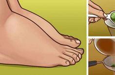 Απαλλαγείτε από τα πρησμένα πόδια και αστραγάλους με αυτό το αποτελεσματικό φυσικό φάρμακο - Daddy-Cool.gr
