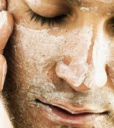 Elképesztő szépségreceptek szódabikarbónával - MindenegybenBlog Oily Skin Care, Dry Skin, Skin Care Tips, Pimple, Get Rid Of Blackheads, Avon, Baking Soda, Facial Care, Acne Facial