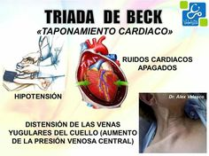 Triada de Beck