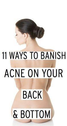 WE HEART IT: 11 Ways to Banish Acne on Your Back & Bottom