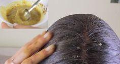 Découvrez dans cette vidéo toutes les ingrédients nécessaires pour fabriquer un masque miraculeux permettant une pousse cheveux 4 fois plus accélérée que tout les autres masques mais attention il faut pas le poser plus de 15 minutes car certains éléments peuvent nuire à votre cuir chevelu …