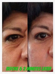 before & after crows feet eyes photos, Instantly Ageless by Jeunesse Global www.perfectlyflawless.jeunesseglobal.com