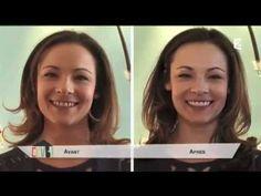 Facette Dentaire : Le Sourire de Vos Rêves à Portée de Main