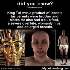 did-you-kno: Research shows that that these characteristics ran in the family, and that Tutankhamun's parents were definitely siblings. (In ancient Egypt it was believed that incest kept the bloodline pure.) He also may have suffered from inherited temporal lobe epilepsy, which could be why he and his relatives were known for having religious visions. Source