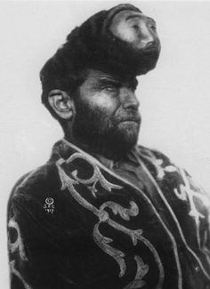 Pasqual Penon, the man with 2 heads, born in Mexico 1862.