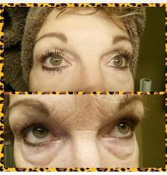 My girlfriends results! 2minute results! INSTANTLY AGELESS! Amazing.