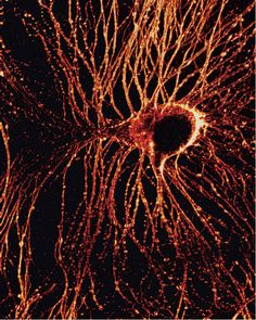 Second-harmonic generation microscopy image of a primary cultured Aplysia neuron stained with the membrane dye DHPESBP. (From Optical Recording of Action Potentials with Second-Harmonic Generation Microscopy, Daniel A. Dombeck et al.)