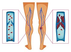 Diagram Showing Blood Clot In Human Legs Vector Photo, Trauma, Blood, Diagram, Neon, Medical Doctor, Health, Science, Sport