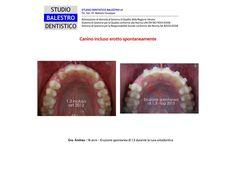 Casi clinici ortodontici Canino incluso erotto spontaneamente http://www.studiodentisticobalestro.com/2014/10/canino-incluso-erotto-spontaneamente.html