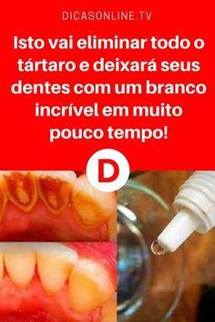 Deixar dentes brancos | Isto vai eliminar todo o tártaro e deixará seus dentes com um branco incrível em muito pouco tempo! | Este tratamento caseiro, além de eliminar o tártaro, deixa os dentes com um branco perfeito. Aprenda ↓ ↓ ↓
