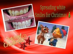 Spreading white smiles for Christmas!! Ask me about my stocking stuffer deals!!