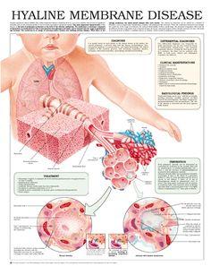 Hyaline Membrane Disease