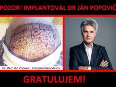 Transplantácia vlasov doktor Popovič - skúsenosti #transplantaciavlasov #implantaciavlasov #janpopovic #mudrjanpopovic #drjanpopovic Bratislava, Pandora