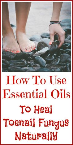 Remedies For Toenail Fungus How to heal toenail fungus naturally, with essential oils. - Essential oils good for toenail fungus. Toenail Fungus Remedies, Toenail Fungus Treatment, Young Living Oils, Young Living Essential Oils, Essential Oil Uses, Skin Food, Herbal Medicine, Home Remedies, Natural Remedies