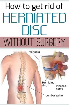 How to get rid of herniated disc without surgery.