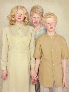 Gustavo Lacerda Albinos