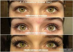 Does Rodan and Fields Lash Boost really work?  ^^^^  See for yourself.  Lash Boost is not a mascara...it's a serum loaded full of Biotin, Keratin and Peptides.  These are YOUR lashes! For 10% off retail and FREE shipping straight to your door, contact me: 636-248-4463 or ReaganOglesby@gmail.com