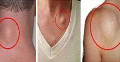 Υγεία - Χωρίς φάρμακα και νυστέριΤα εξογκώματα του δέρματος συνήθως εμφανίζονται στο κεφάλι, το λαιμό, στις μασχάλες και το χέρι.Αυτοί είναι καλοήθεις όγκοι που μπ