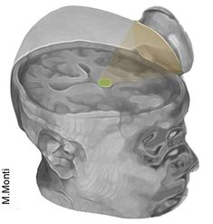 Scientists jump-start two people's brains after coma – UCLA College Brain Science, Science And Nature, Man Up, Brain Injury, Neurology, Neurons, 25 Years Old, Neuroscience, Science And Technology
