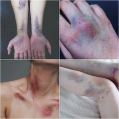 Internal Bleeding ll Bruises, always good to know the signs, especially when you work closely on and around people.