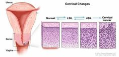 """Nearly all cases of cervical cancer are caused by a virus known as HPV. The good news is that regular screening and early HPV vaccination can prevent the disease. For details, see our health guide """"Understanding Cervical Changes"""" http://1.usa.gov/1omriM3"""